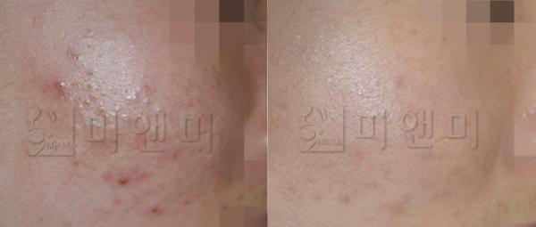 무어스파 피부관리